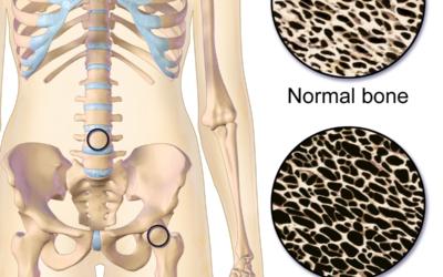 Valpreventie osteoporose
